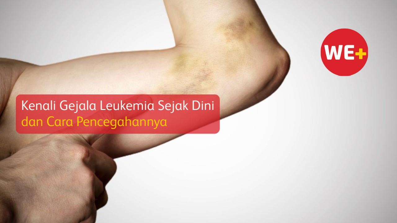 Kenali Gejala Leukemia Sejak Dini dan Cara Pencegahannya